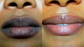 Download HOW TO LIGHTEN DARK LIPS NATURALLY /Fast Result/ GET PINK LIPS IN 2 DAYS Video