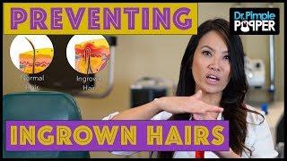 Download Preventing Ingrown Hairs Video