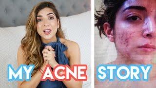 Download How I Got Rid Of My Acne + My Skin Story | Amelia Liana Video
