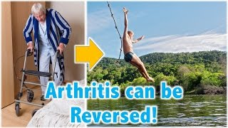 Download Arthritis can be Reversed! Video