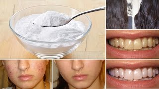 Download 10 Benefits of Baking Soda for Hair, Skin and Body Video