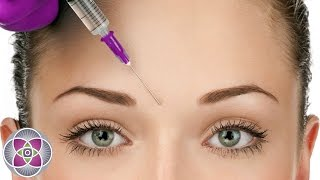 Download What is Botox? - Botox Before and After Treatment Video