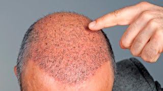 Download How to Make Hair Grow in Bald Spots - Hair Growth Tips Video