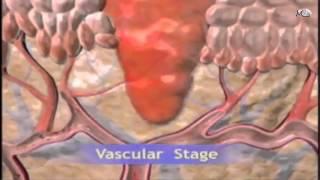 Download Pathology 3D / inflammation Video