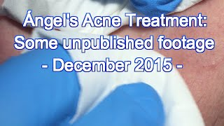 Download Ángel's Acne Treatment: Some Unpublished Footage -December 2015 Video