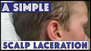 Download A Sunday Scalp Laceration Video