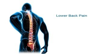 Download 5 Steps to Lower Back Pain Relief Video
