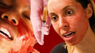 Download Women Get Facials With Their Own Blood Video