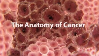 Download What is cancer? What causes cancer and how is it treated Video