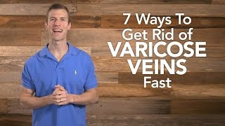 Download 7 Ways To Get Rid of Varicose Veins Fast Video