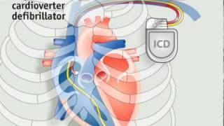 Download How pacemakers work | The Economist Video