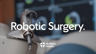 Download Robot Arm Assisted Surgery   Nuffield Health Video