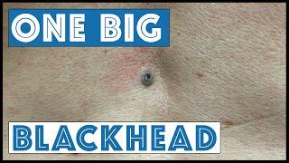 Download One Big Blackhead, aka Dilated Pore of Winer Video