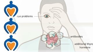 Download Thyroid problems - most common thyroid problems, symptoms and treatment Video