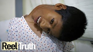 Download Mahendra Ahirwar: The Boy Who Sees The World Upside Down   Medical Documentary   Reel Truth Video