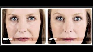 Download Phytoceramides Before And After Video