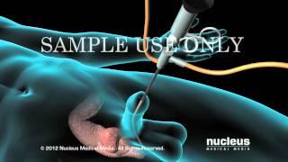 Download Resección transuretral de la próstata (TURP) Video