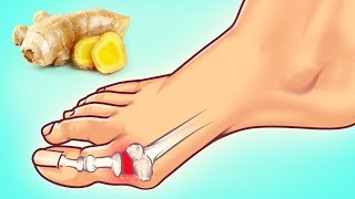 Download 10 Expert Tips on How to Fight Gout Attack Video