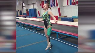 Download One-Legged Gymnast Overcomes the Odds Video