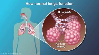 Download Understanding COPD Video
