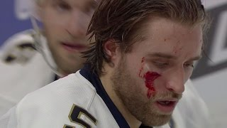 Download Gotta See It: Ekblad shaken after taking puck to the face Video