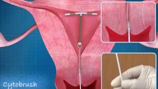 Download Intra Uterine Device (IUD) CopperT Animation | ADMAA Video