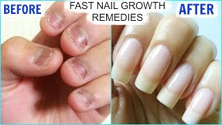 Download How To GROW Long Strong Nails Fast At Home | SuperPrincessjo Video