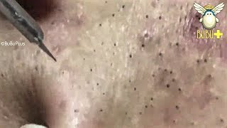 Download CYSTIC ACNE, BLACKHEADS, WHITEHEADS AND PIMPLES EXTRACTION ACNE TREATMENT 181229! Video
