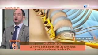 Download Hernia Discal tratamiento con Cirugía Mínimamente Invasiva Video