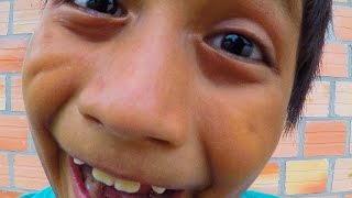 Download Peru Orphanage Update - Smarter Every Day 163 Video