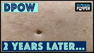 Download Flip it & Reverse it Blackhead Extraction / Dilated Pore of Winer Video