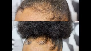 Download WORLD'S BEST EDGE CONTROL | HOW TO SNATCH YOUR HAIR AND EDGED IN LESS THAN FIVE MIN Video