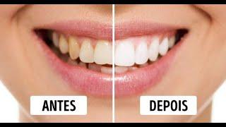 Download O melhor Creme dental do mundo ! Video