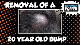 Download A 20-year old Embarrassing Bump on the Scalp: Dr Pimple Popper Video