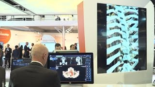 Download RSNA 2016 - Rapid Results Technology Video