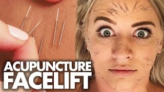 Download We Got 100 Acupuncture Needles In Our FACE!?! (Beauty Trippin) Video