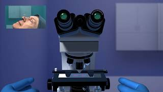 Download Mohs Surgery Video
