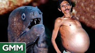 Download People with Shocking Things Living Inside of Them Video