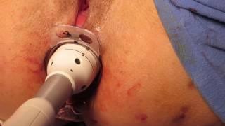 Download Apex Technique - cirurgia para correção do prolapso oculto do reto Video