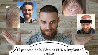 Download El proceso de la técnica FUE o Implante Capilar Video