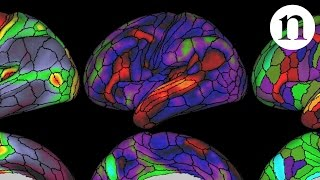 Download The ultimate brain map Video