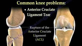Download Knee Pain , common causes- Everything You Need To Know - Dr. Nabil Ebraheim Video