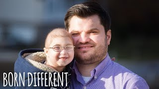 Download My Rare Dwarfism Makes Me 1 in 4 Million   BORN DIFFERENT Video