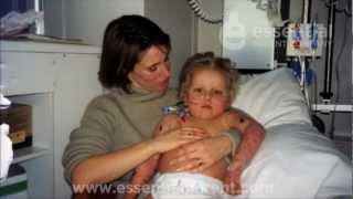 Download Meningitis in Babies and Children - Signs of Meningitis in Toddlers Video