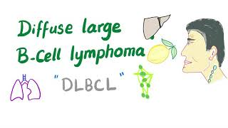 Download Diffuse Large B-Cell Lymphoma (DLBCL) | Aggressive B-Cell Non-Hodgkin's Lymphoma Video