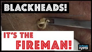 Download Don't miss these huge blackhead extractions in ″The Fireman″ Video