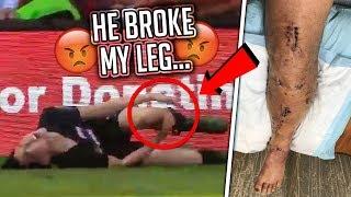 Download He Broke My Leg At KSI's Soccer Event (serious injury) Video