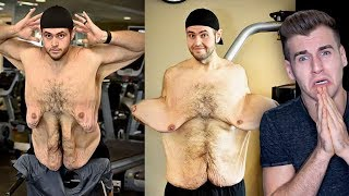 Download Meet The Man Who Has Uncontrollable Amount Of Loose Skin Video