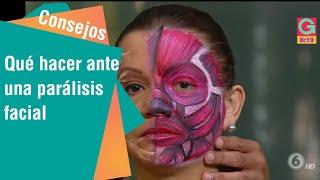 Download Qué hacer ante una parálisis facial Video