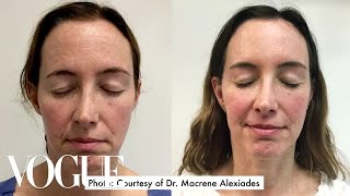 Download One Woman Gets 15 Cosmetic Procedures in 12 Months | Vogue Video